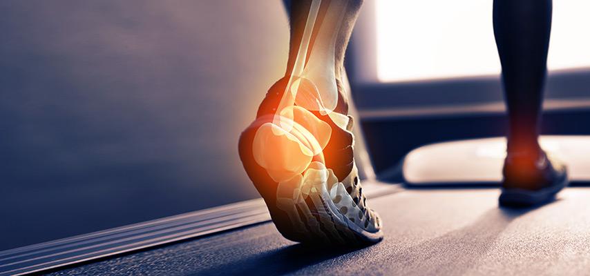 Nilkan ja jalkaterän kivut ja toimintahäiriöt - Tule Kuntoon