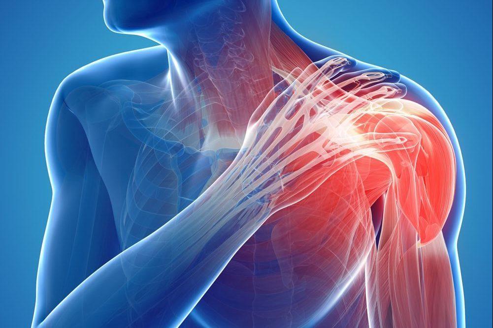 Kiertäjäkalvosinoireyhtymä - Kipu olkapäässä - Fysioterapia