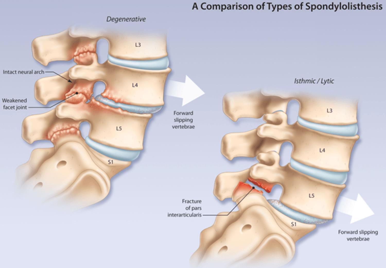Spondylolyysi ja spondylolisteesi