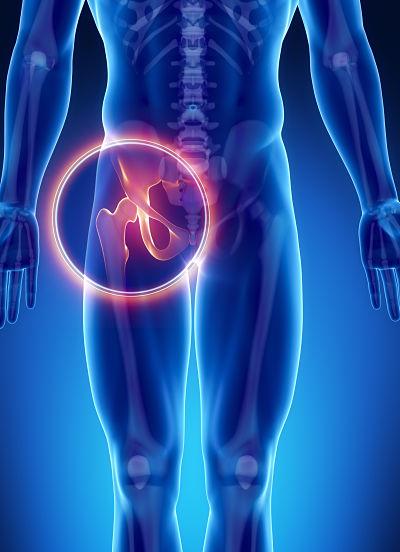 Lonkkakipu - Limapussin tulehdus - Apua fysioterapiasta